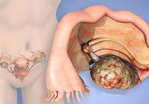 cancer no ovario