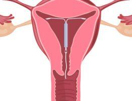 diferença entre DIU de cobre e DIU hormonal